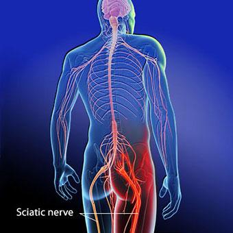 sciatica-s2-sciatic-nerve